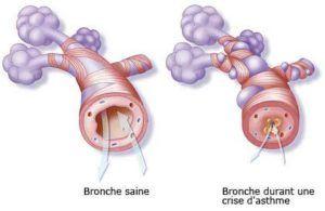 asthme-maladies-tabac-appareil-respiratoire